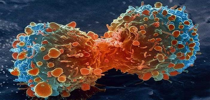 cancer-lambert_2469736b