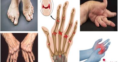 rheumatoid-arthritis-is-a-multi-organ-scourge-medtoall
